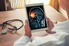 Tablet-Computer zeigt ein Röntgenbild des Kopfes mit dem eingezeichneten Schmerzzentrum